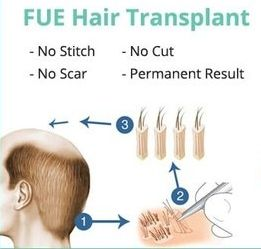 FUE method - hair transplant technique