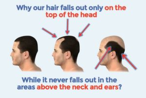 How to prevent hair fall out
