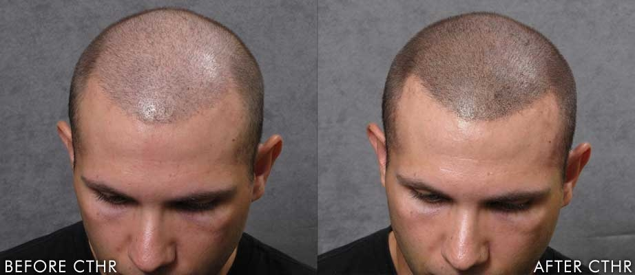 SMP - scalp micro pigmentation: hairline tattoo