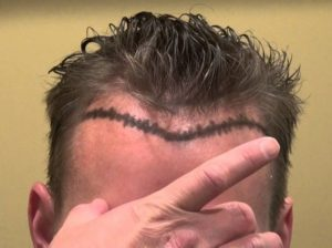 Receding hairline, mature hairline treatment