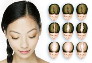 Hair restoration women