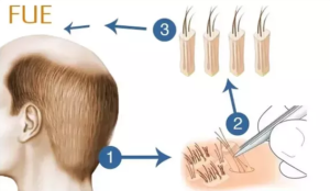 Hair transplant surgery: stop hair loss immediately!