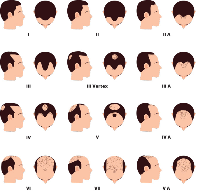Male pattern baldness: Norwood scale with mature hairline