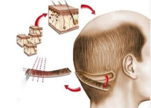 FUT / FUSS hair transplant method