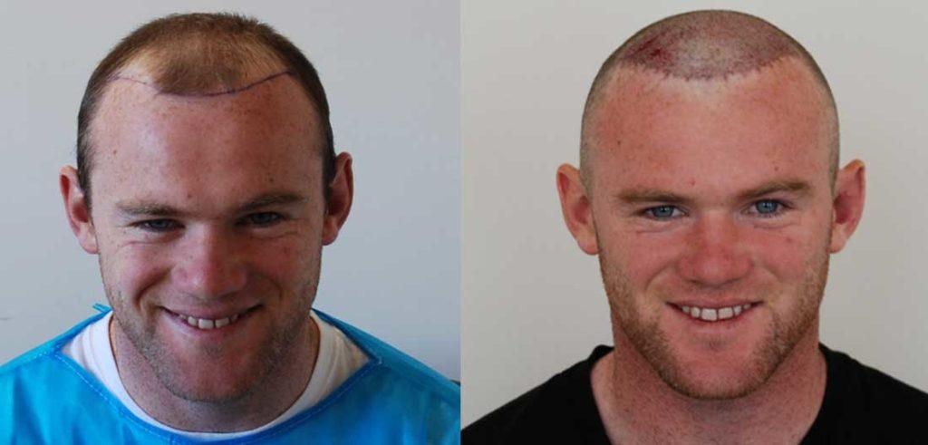Wayne Rooney hair transplant story