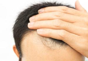 Hair loss treatment work