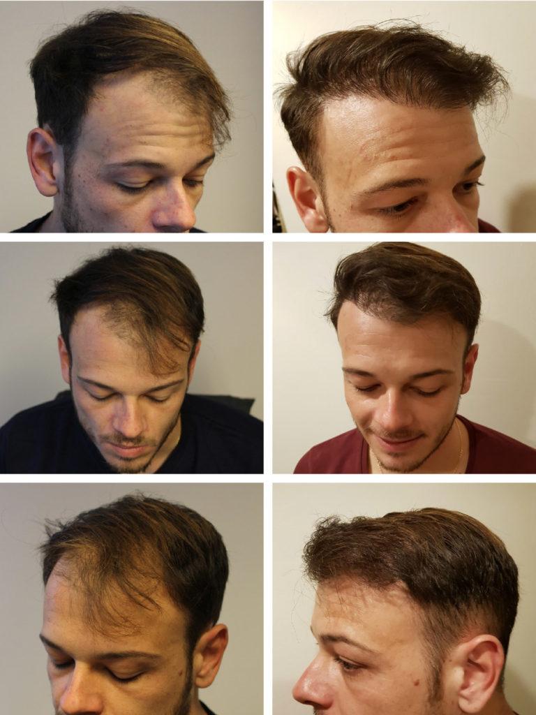 Come rendere i capelli piu spessi - Stempiatura uomo