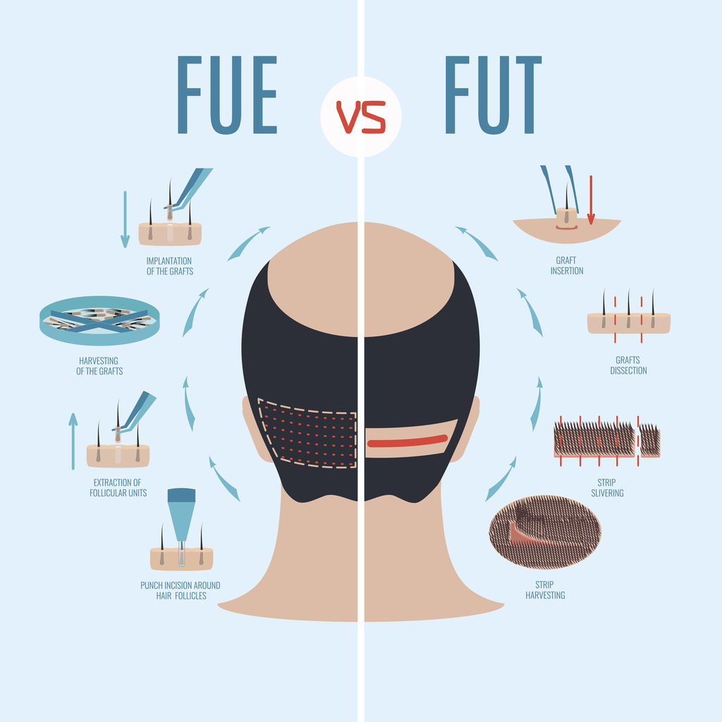 FUT vs FUE hair transplant differences