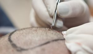 Hair transplant quality and price - Turkey, Hungary